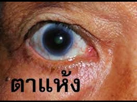 อาการ Giardia ในภาพผู้ใหญ่