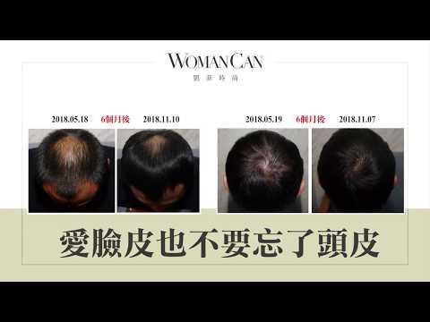 WomanCan凱菲 x 愛臉皮也不要忘了頭皮