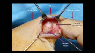MEDICINE in a Nutshell: Injuries of the UCL of the thumb MCPJ