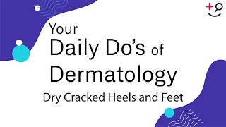 Dry Cracked Heels and Feet - Daily Do's of Dermatology