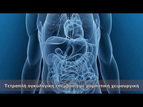 Η ανάγκη να πάρετε την ινσουλίνη στο διαβήτη τύπου 2