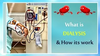 What is Dialysis and How Dialysis Machine works?