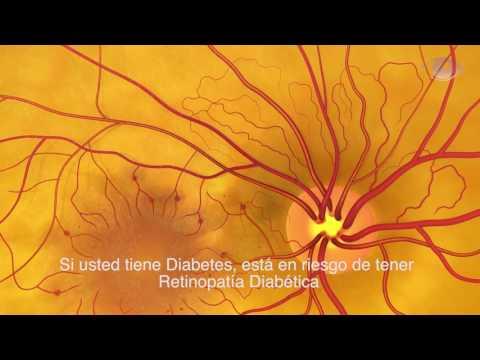Ataque al corazón en un contexto de crisis hipertensiva