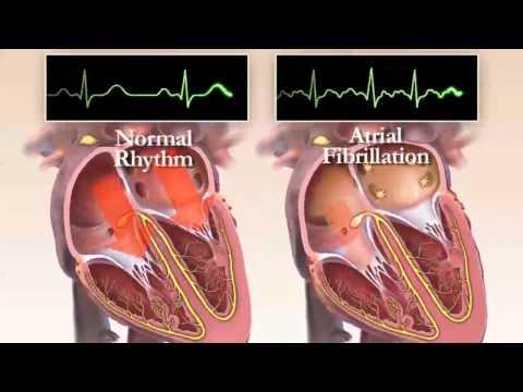 2 hipertenzijos gydymo režimas