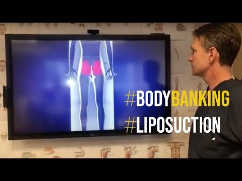 Alternative to Liposuction, Body Banking Procedure Explained by Dr. Steinbrech