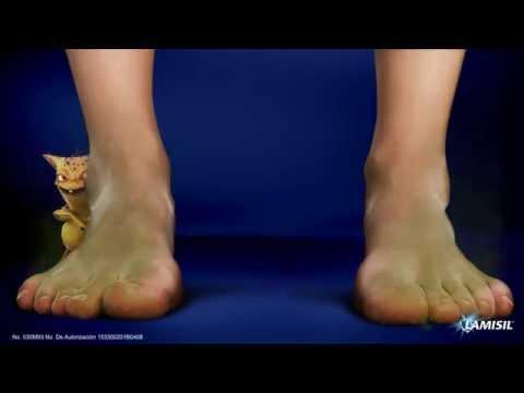 Como curar el hongo del pies por el vinagre