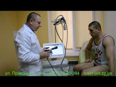 Анатомия мужчины предстательной железы
