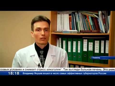 В Тюменской области в два раза выросла смертность от цирроза печени