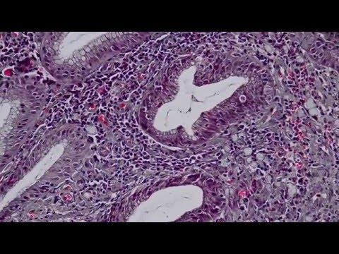 Computer na diagnostic ng parasites sa katawan perm