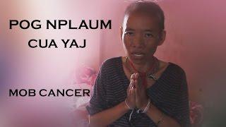 Pog Nplaum ( Cua Yaj ) Mob Cancer