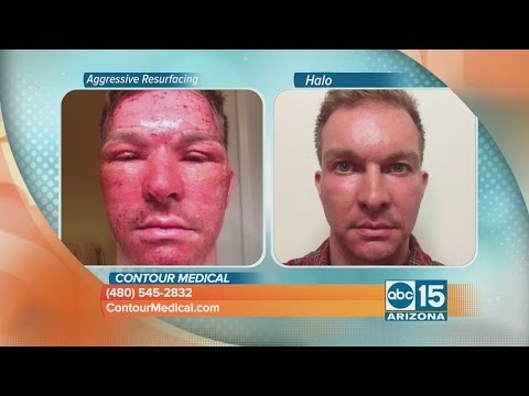 Mask Botox asset expert review ng customer