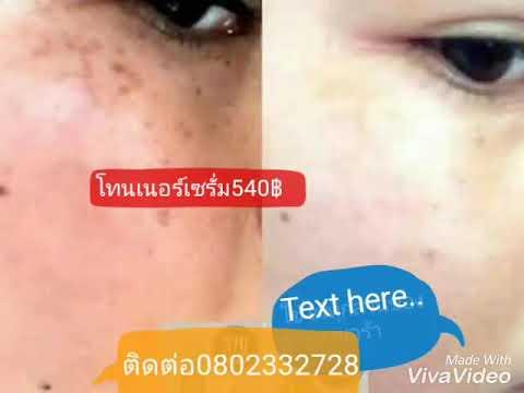 เป็นข้อต่อโรคสะเก็ดเงินรักษาในประเทศไทย