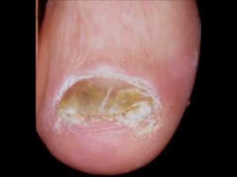 Ragazze che trattato un fungo di piede
