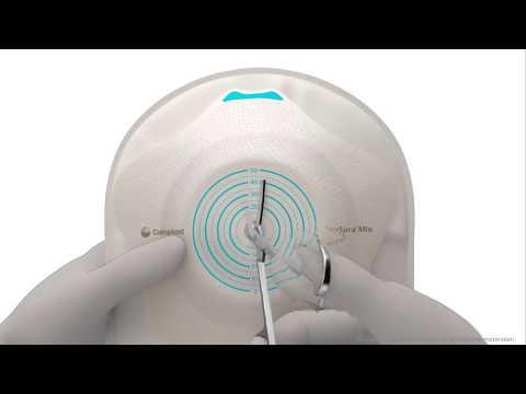 Sensura Mio Convex Flip 1 delig ileo