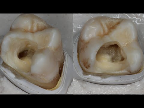 Endodontic series, Part 1: Access opening