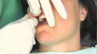 Oral Cancer Screening Exam