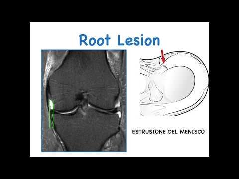 Lesioni della Radice Meniscale (ROOT Lesion)
