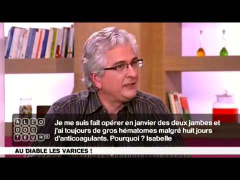 Лікування La varicosité tcherkasi