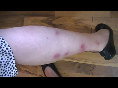 Video Tips For Itchy Chigger Bites!