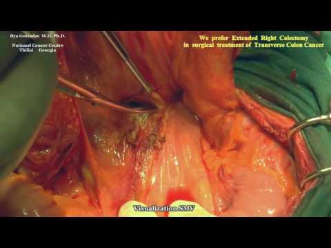 Rozszerzone całkowite wycięcie krezki okrężnicy poprzecznej (CME) z limfadenektomią D3 w raku miejscowo zaawansowanym (locally advanced cancer)