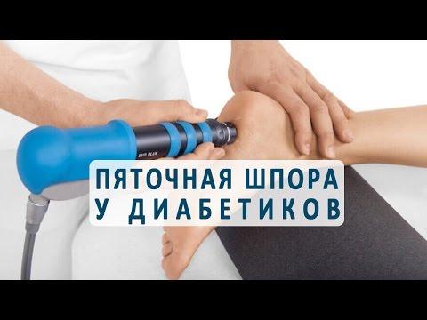 Арбуз диабетику вреден