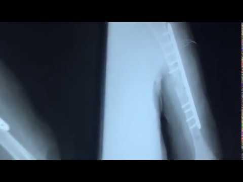 Ungüento para restaurar la articulación de la rodilla