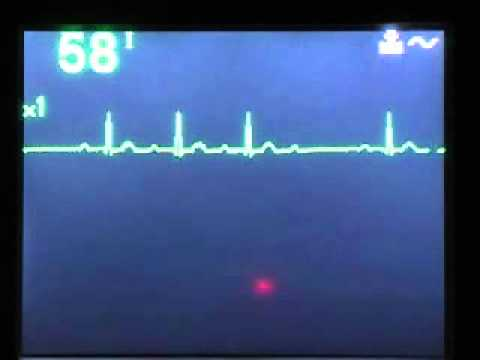 Nego može sniziti krvni tlak osobe