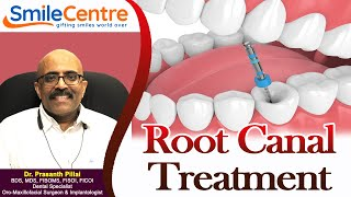 What is Root Canal - Video