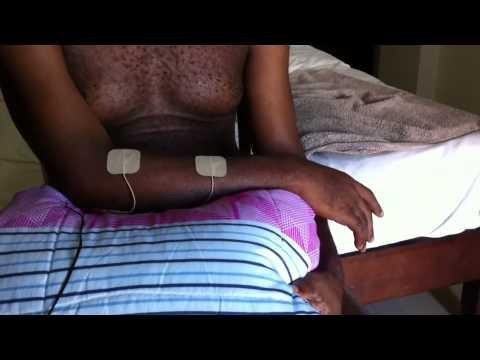 Electrostimulation สำหรับ strephexopodia