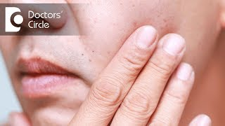 What causes red dots on face and its management? - Dr. Nischal K