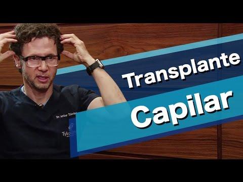 Como é feito o transplante capilar?