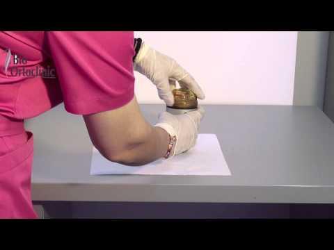 Tratamentul articulației șoldului dreapta de șold 2