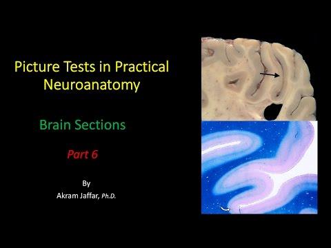 Anatomia przekrojowa mózgu część 6