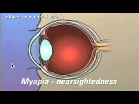 A látásélesség vizsgálata 0 1 alatt