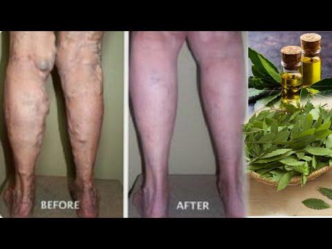 Fonduri cu revizuiri cu picioarele varicoase