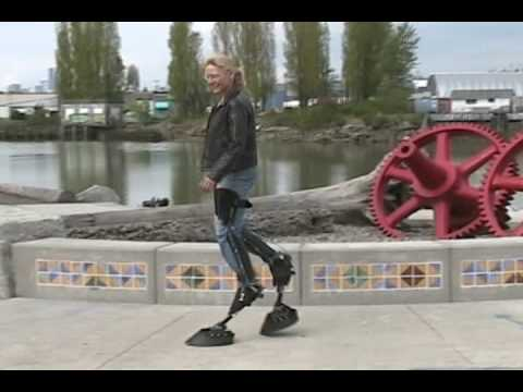 Bionic Animal Legs Are Built For Theatre and/or Enchanted Woodlands