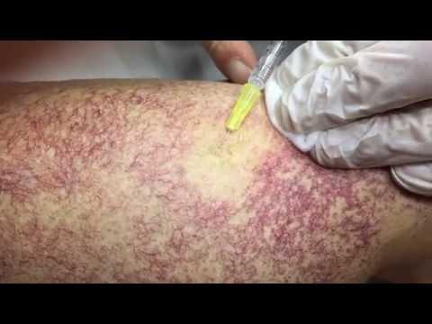 Vene varicose di un piede