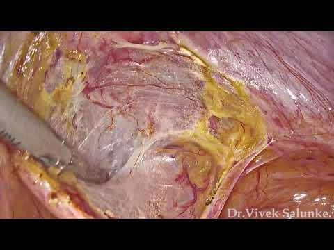 Oxiuros tratamiento y prevencion