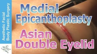 Asian Blepharoplasty Double Eyelid with Medial Epicanthoplasty Live Surgery by Seattle Dr. Young