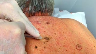Back Blackheads - Dilated Pores of Winer, Revisited