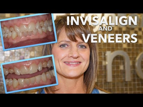 Do INVISALIGN first! MUST watch before getting DENTAL VENEERS!   (EP 05 Cosmetic Dentistry)