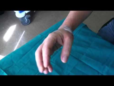 Operazioni allatto di deformazione di piede