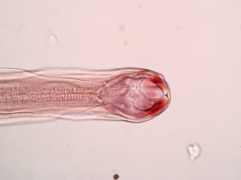 Mi jobb a pinworms től?