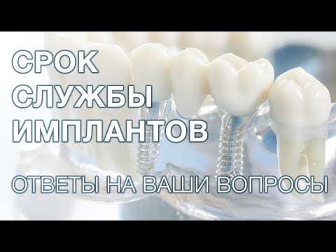 Какой срок службы зубных имплантов?