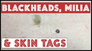 Medley of Blackheads, Milia & Skin Tags!