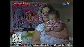 24 Oras: Baby miracle na sobrang liit nang isilang, masigla at patuloy na lumalaban