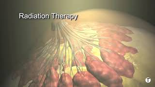 Video Breast cancer treatment