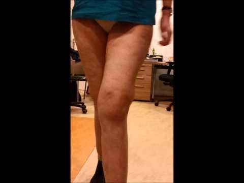 Nimulid Osteochondrose Bewertungen