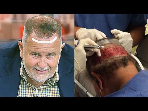 Mga review ng baldness lunas
