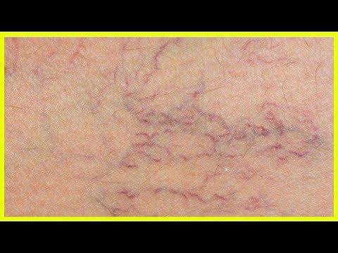 Die Behandlung der Schuppenflechte rostow-auf-donu